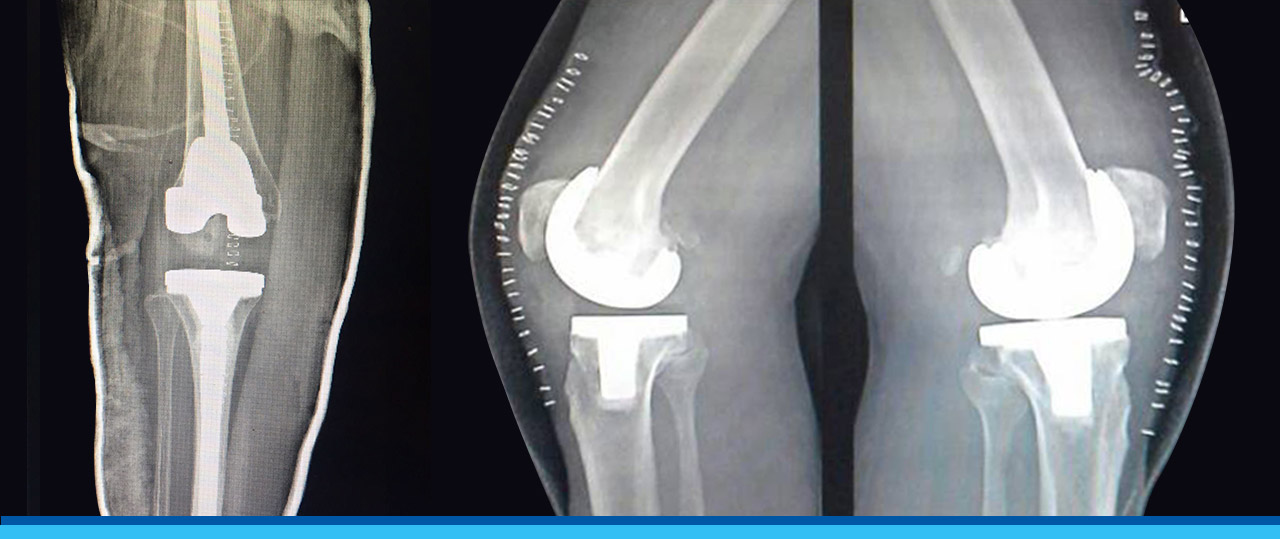 Total Knee Replacement in Bangalore