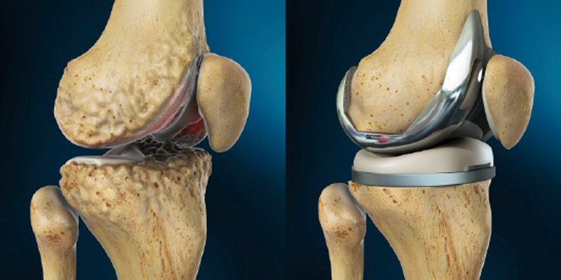 Facts About Total Knee Replacement You Must Know Aditi