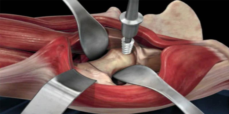 How-Effective-Is-An-Anterior-Hip-Replacement